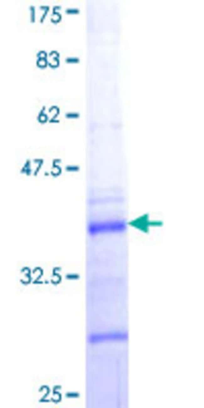 Abnova™Human COL5A2 Partial ORF (NP_000384, 41 a.a. - 124 a.a.) Recombinant Protein with GST-tag at N-terminal 10μg Abnova™Human COL5A2 Partial ORF (NP_000384, 41 a.a. - 124 a.a.) Recombinant Protein with GST-tag at N-terminal