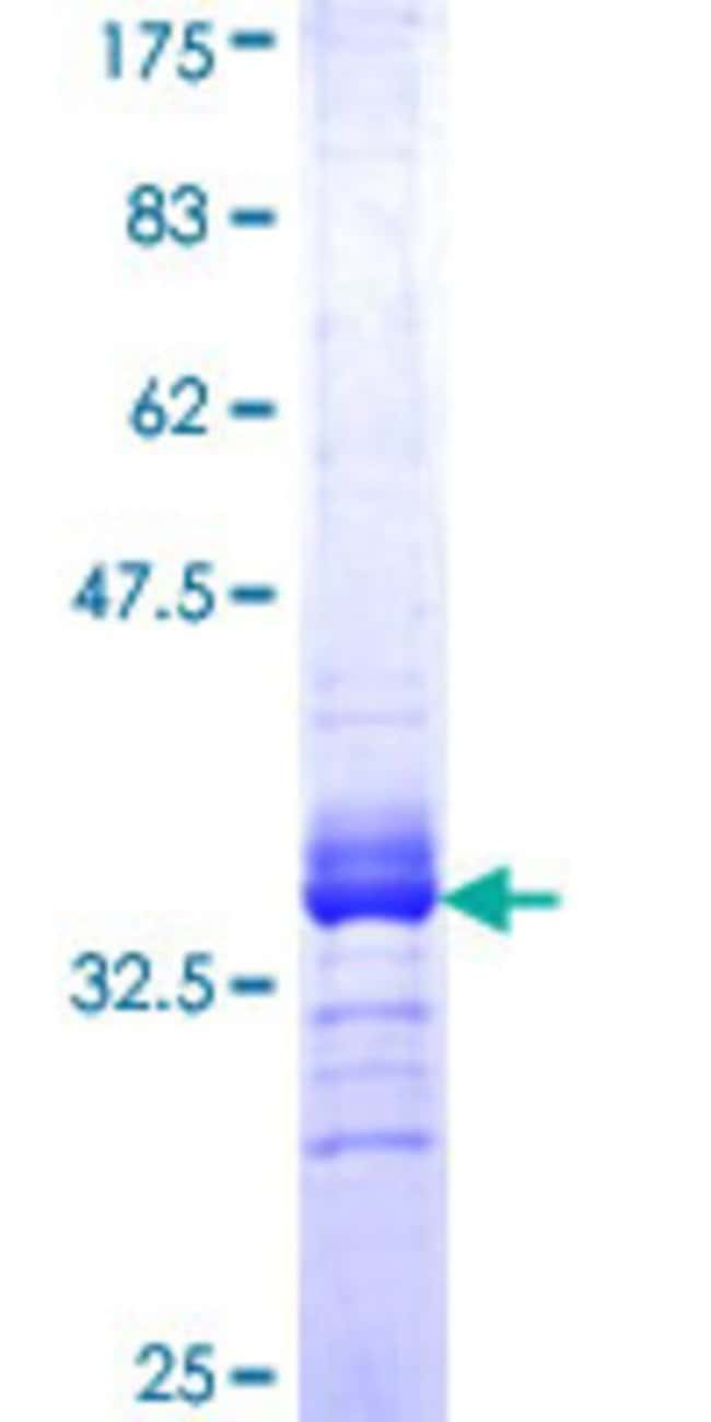 Abnova™Human COL9A3 Partial ORF (NP_001844, 280 a.a. - 338 a.a.) Recombinant Protein with GST-tag at N-terminal 10μg Abnova™Human COL9A3 Partial ORF (NP_001844, 280 a.a. - 338 a.a.) Recombinant Protein with GST-tag at N-terminal