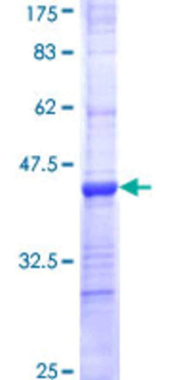 Abnova™ Human COL19A1 Partial ORF (NP_001849, 27 a.a. - 114 a.a.) Recombinant Protein with GST-tag at N-terminal 10μg Abnova™ Human COL19A1 Partial ORF (NP_001849, 27 a.a. - 114 a.a.) Recombinant Protein with GST-tag at N-terminal