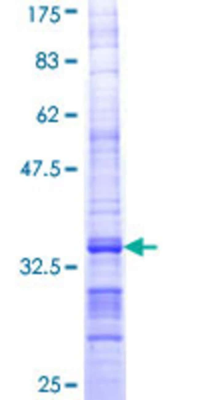 Abnova™Human COX10 Partial ORF (NP_001294, 26 a.a. - 100 a.a.) Recombinant Protein with GST-tag at N-terminal 25μg Abnova™Human COX10 Partial ORF (NP_001294, 26 a.a. - 100 a.a.) Recombinant Protein with GST-tag at N-terminal