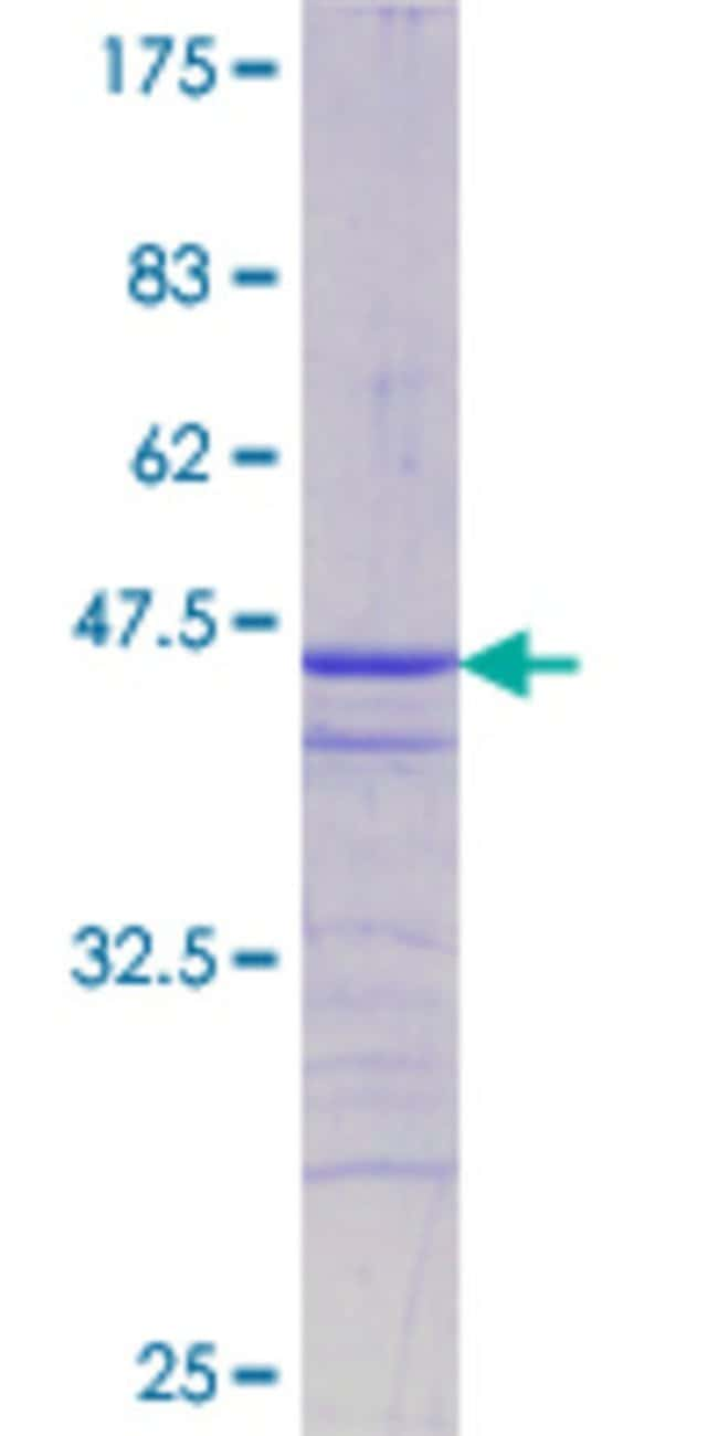 AbnovaHuman ATF2 Partial ORF (NP_001871.2, 91 a.a. - 190 a.a.) Recombinant