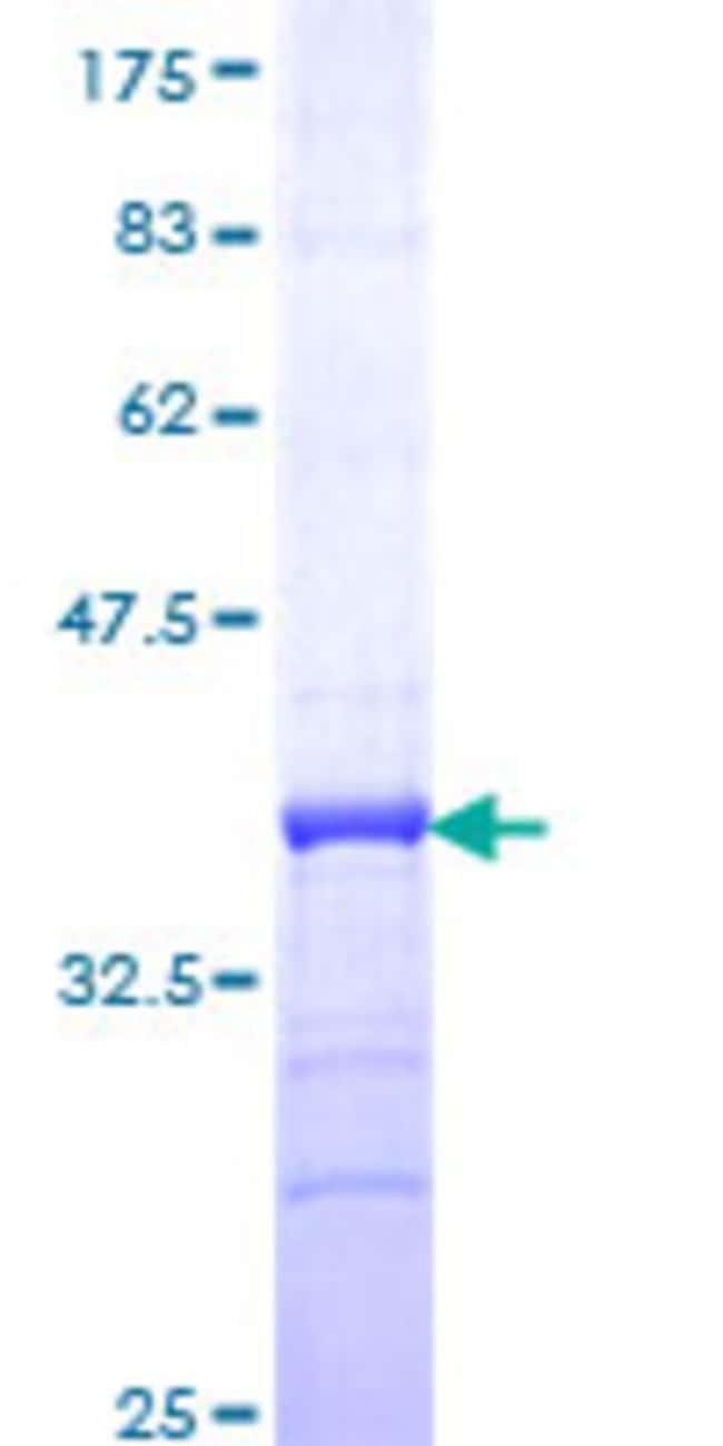 Abnova™Human CREBL2 Partial ORF (NP_001301, 31 a.a. - 120 a.a.) Recombinant Protein with GST-tag at N-terminal 25μg Abnova™Human CREBL2 Partial ORF (NP_001301, 31 a.a. - 120 a.a.) Recombinant Protein with GST-tag at N-terminal
