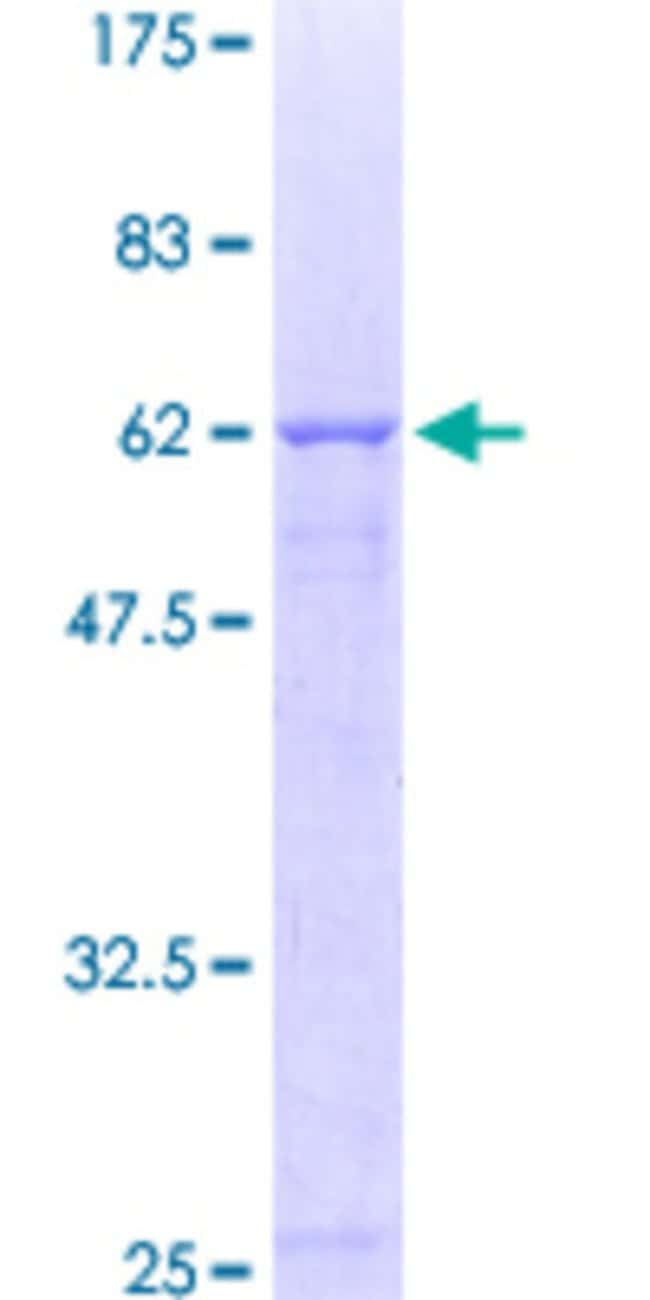 Abnova™ Human CRHBP Full-length ORF (AAH18038, 1 a.a. - 322 a.a.) Recombinant Protein with GST-tag at N-terminal 25μg Abnova™ Human CRHBP Full-length ORF (AAH18038, 1 a.a. - 322 a.a.) Recombinant Protein with GST-tag at N-terminal