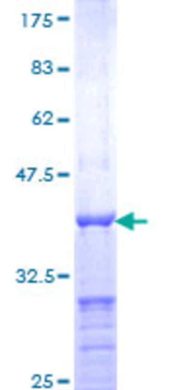 Abnova™Human CRX Partial ORF (NP_000545, 1 a.a. - 95 a.a.) Recombinant Protein with GST-tag at N-terminal 10μg Abnova™Human CRX Partial ORF (NP_000545, 1 a.a. - 95 a.a.) Recombinant Protein with GST-tag at N-terminal
