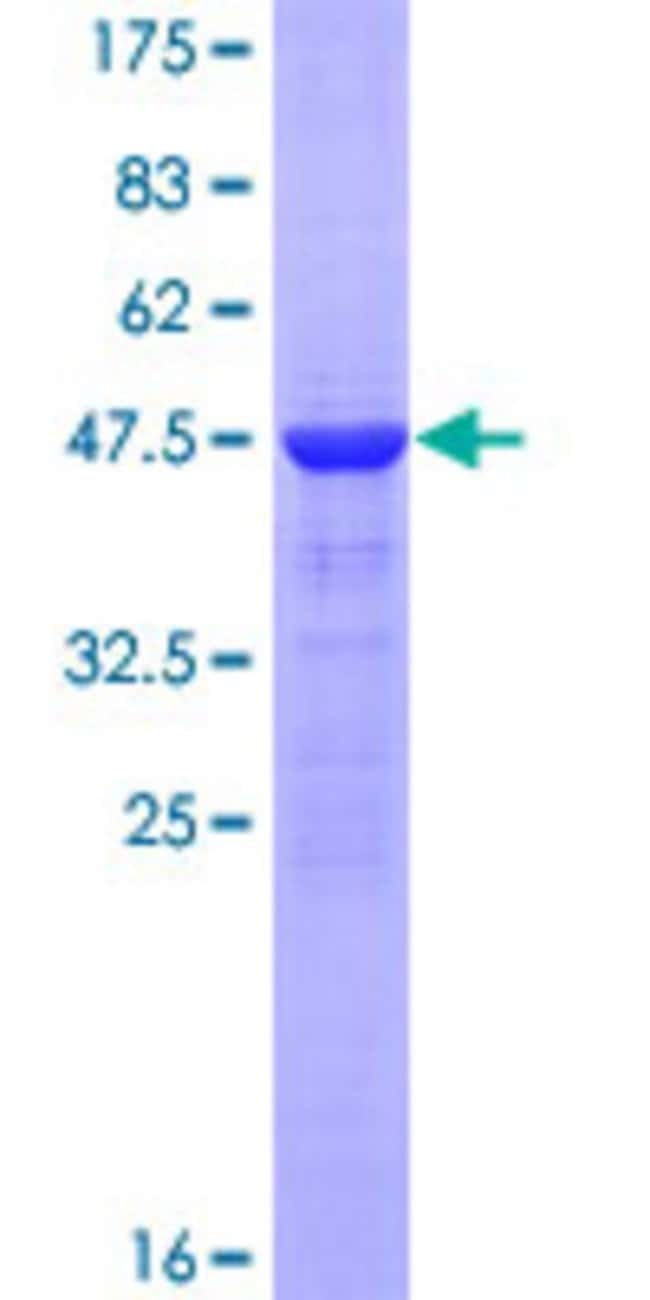 Abnova™Human CRYAA Full-length ORF (NP_000385.1, 1 a.a. - 173 a.a.) Recombinant Protein with GST-tag at N-terminal 25μg Abnova™Human CRYAA Full-length ORF (NP_000385.1, 1 a.a. - 173 a.a.) Recombinant Protein with GST-tag at N-terminal