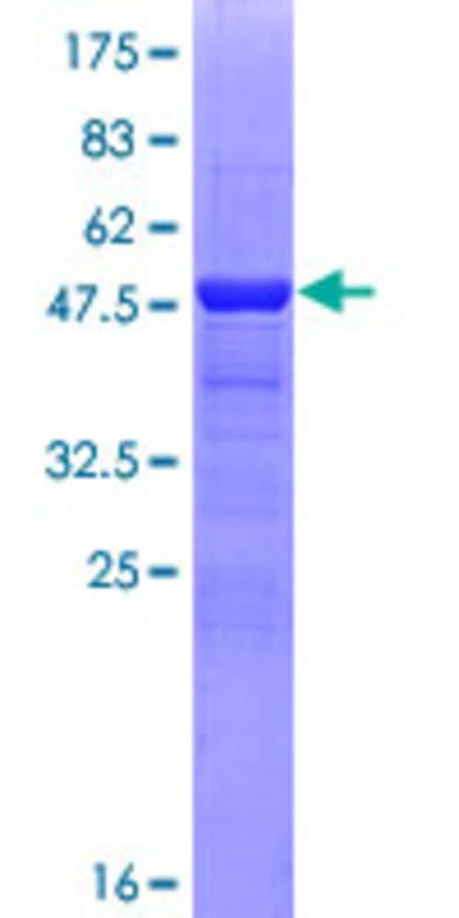 Abnova™ Human CRYBA1 Full-length ORF (NP_005199.2, 1 a.a. - 215 a.a.) Recombinant Protein with GST-tag at N-terminal 10μg Abnova™ Human CRYBA1 Full-length ORF (NP_005199.2, 1 a.a. - 215 a.a.) Recombinant Protein with GST-tag at N-terminal