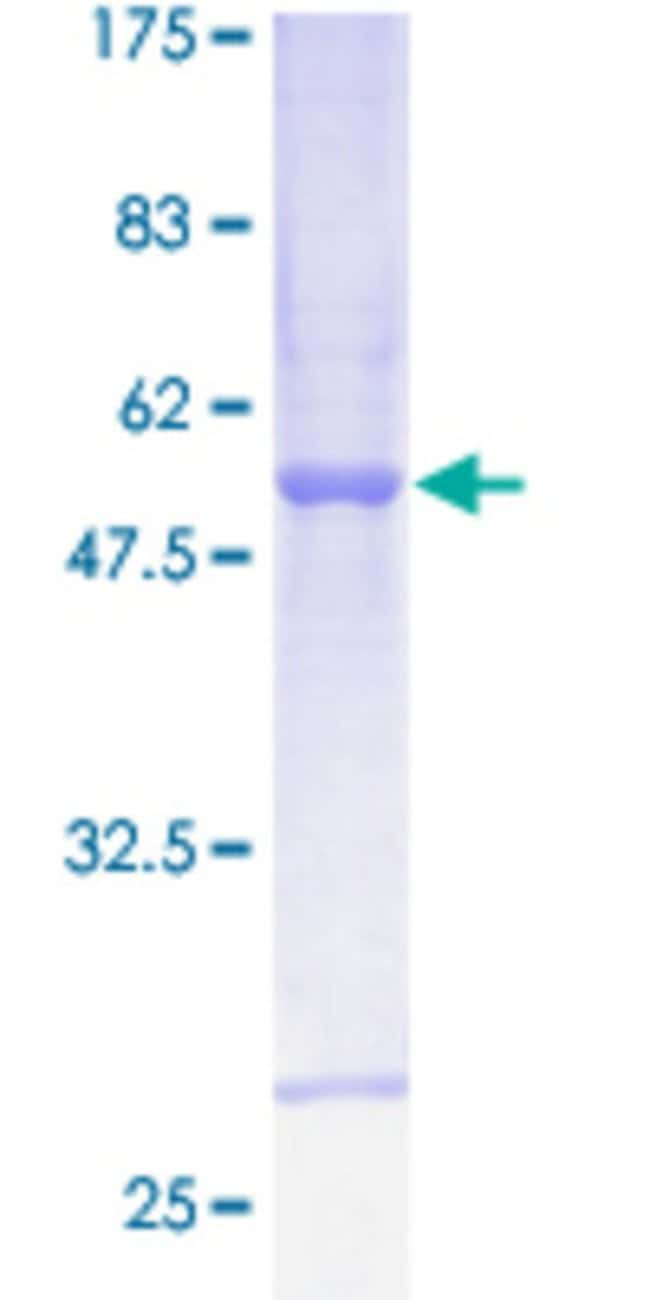 Abnova™ Human CS Full-length ORF (AAH00105.3, 1 a.a. - 264 a.a.) Recombinant Protein with GST-tag at N-terminal 10μg Abnova™ Human CS Full-length ORF (AAH00105.3, 1 a.a. - 264 a.a.) Recombinant Protein with GST-tag at N-terminal