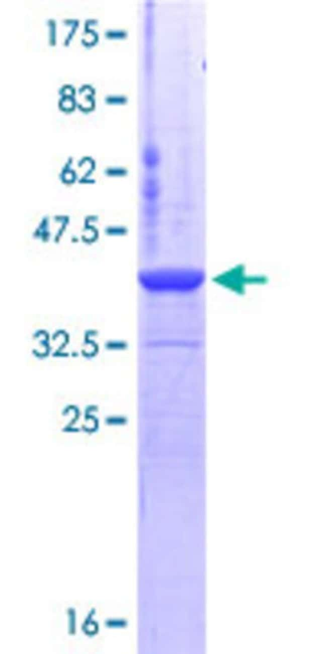 Abnova™Human CSE1L Partial ORF (NP_001307, 872 a.a. - 971 a.a.) Recombinant Protein with GST-tag at N-terminal 10μg Abnova™Human CSE1L Partial ORF (NP_001307, 872 a.a. - 971 a.a.) Recombinant Protein with GST-tag at N-terminal