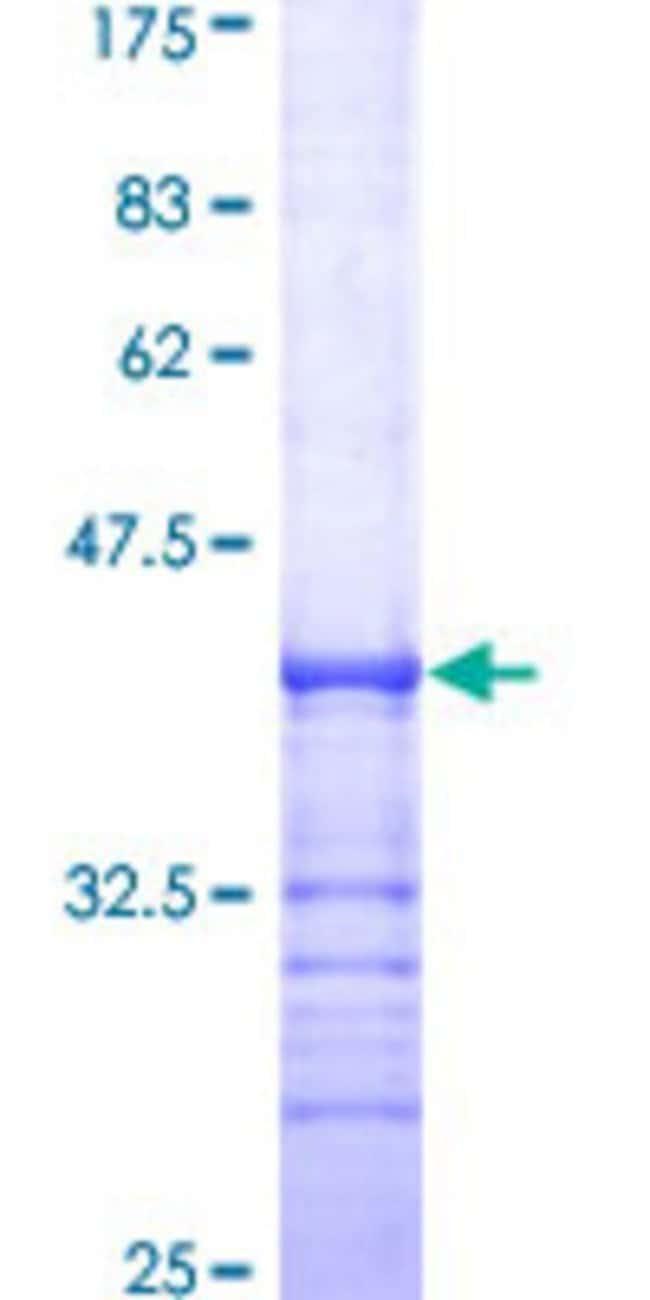Abnova™Human CSF1R Partial ORF (AAH47521, 21 a.a. - 120 a.a.) Recombinant Protein with GST-tag at N-terminal 25μg Abnova™Human CSF1R Partial ORF (AAH47521, 21 a.a. - 120 a.a.) Recombinant Protein with GST-tag at N-terminal