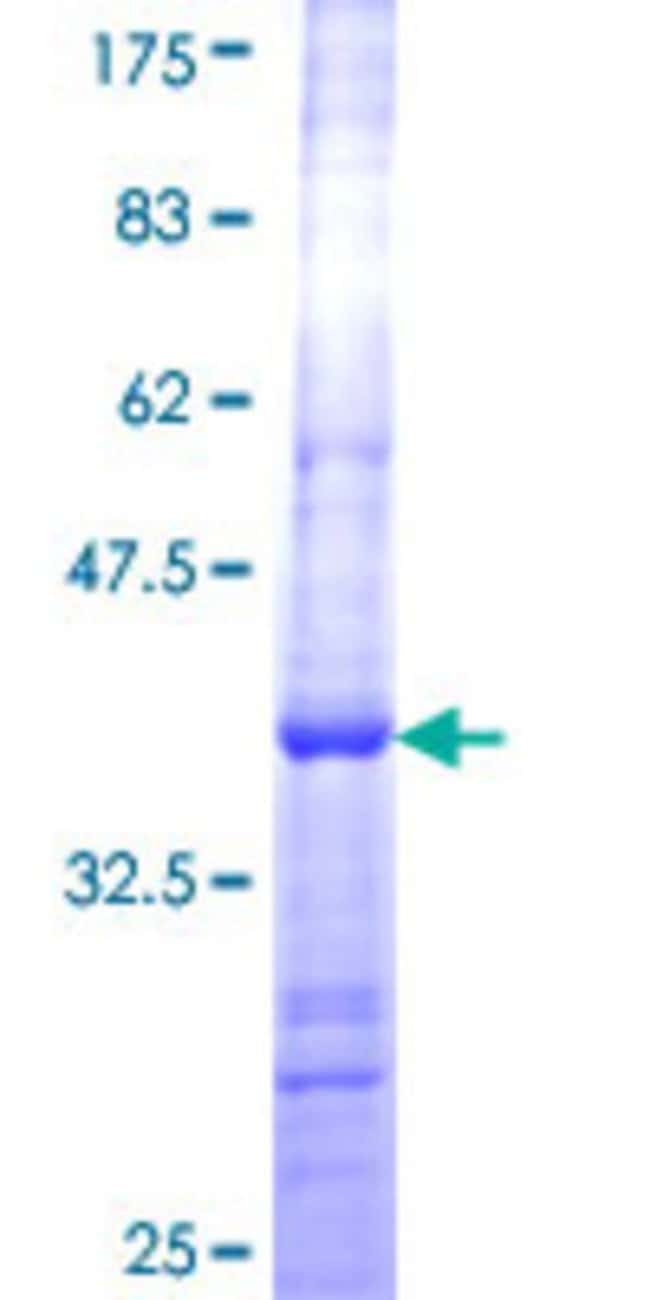Abnova™Human CSH1 Partial ORF (NP_001308, 118 a.a. - 217 a.a.) Recombinant Protein with GST-tag at N-terminal 10μg Abnova™Human CSH1 Partial ORF (NP_001308, 118 a.a. - 217 a.a.) Recombinant Protein with GST-tag at N-terminal