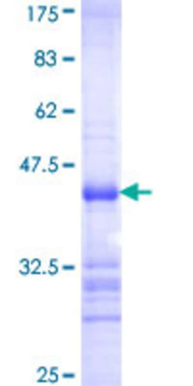 Abnova™Human CSNK1G2 Partial ORF (AAH18699, 315 a.a. - 415 a.a.) Recombinant Protein with GST-tag at N-terminal 10μg Abnova™Human CSNK1G2 Partial ORF (AAH18699, 315 a.a. - 415 a.a.) Recombinant Protein with GST-tag at N-terminal