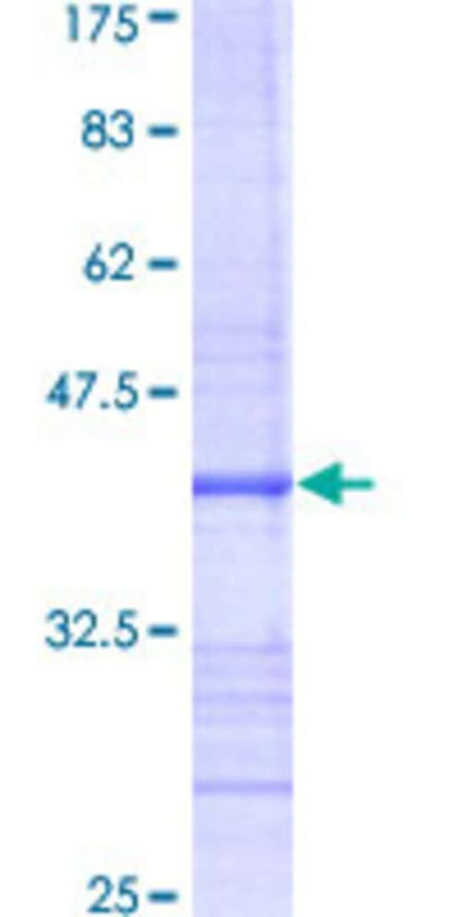 Abnova™Human CSNK2A1 Partial ORF (AAH11668, 1 a.a. - 100 a.a.) Recombinant Protein with GST-tag at N-terminal 25μg Abnova™Human CSNK2A1 Partial ORF (AAH11668, 1 a.a. - 100 a.a.) Recombinant Protein with GST-tag at N-terminal