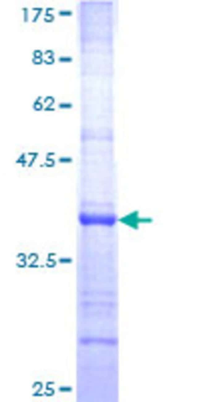 Abnova™Human CSPG3 Partial ORF (NP_004377, 81 a.a. - 179 a.a.) Recombinant Protein with GST-tag at N-terminal 10μg Abnova™Human CSPG3 Partial ORF (NP_004377, 81 a.a. - 179 a.a.) Recombinant Protein with GST-tag at N-terminal