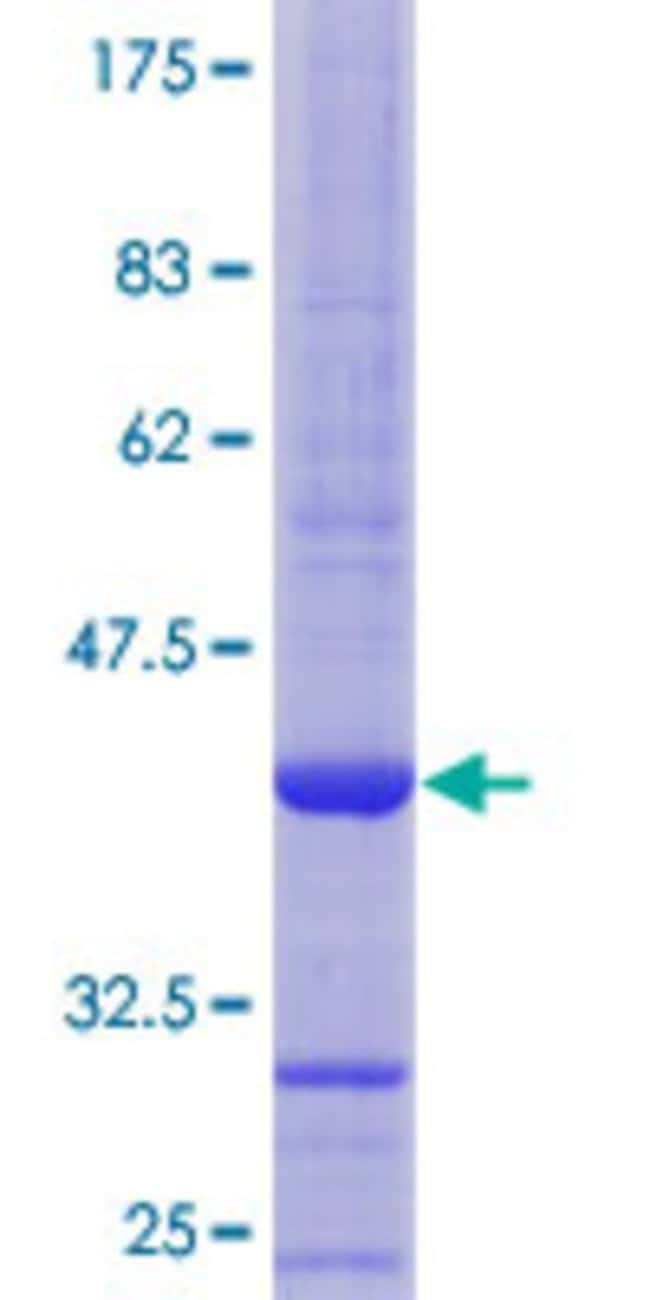 Abnova™ Human CST3 Partial ORF (NP_000090.1, 28 a.a. - 127 a.a.) Recombinant Protein with GST-tag at N-terminal 10μg Abnova™ Human CST3 Partial ORF (NP_000090.1, 28 a.a. - 127 a.a.) Recombinant Protein with GST-tag at N-terminal