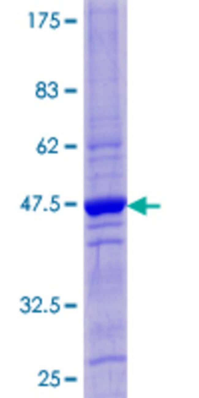 Abnova™Human CST4 Full-length ORF (NP_001890.1, 1 a.a. - 141 a.a.) Recombinant Protein with GST-tag at N-terminal 25μg Abnova™Human CST4 Full-length ORF (NP_001890.1, 1 a.a. - 141 a.a.) Recombinant Protein with GST-tag at N-terminal