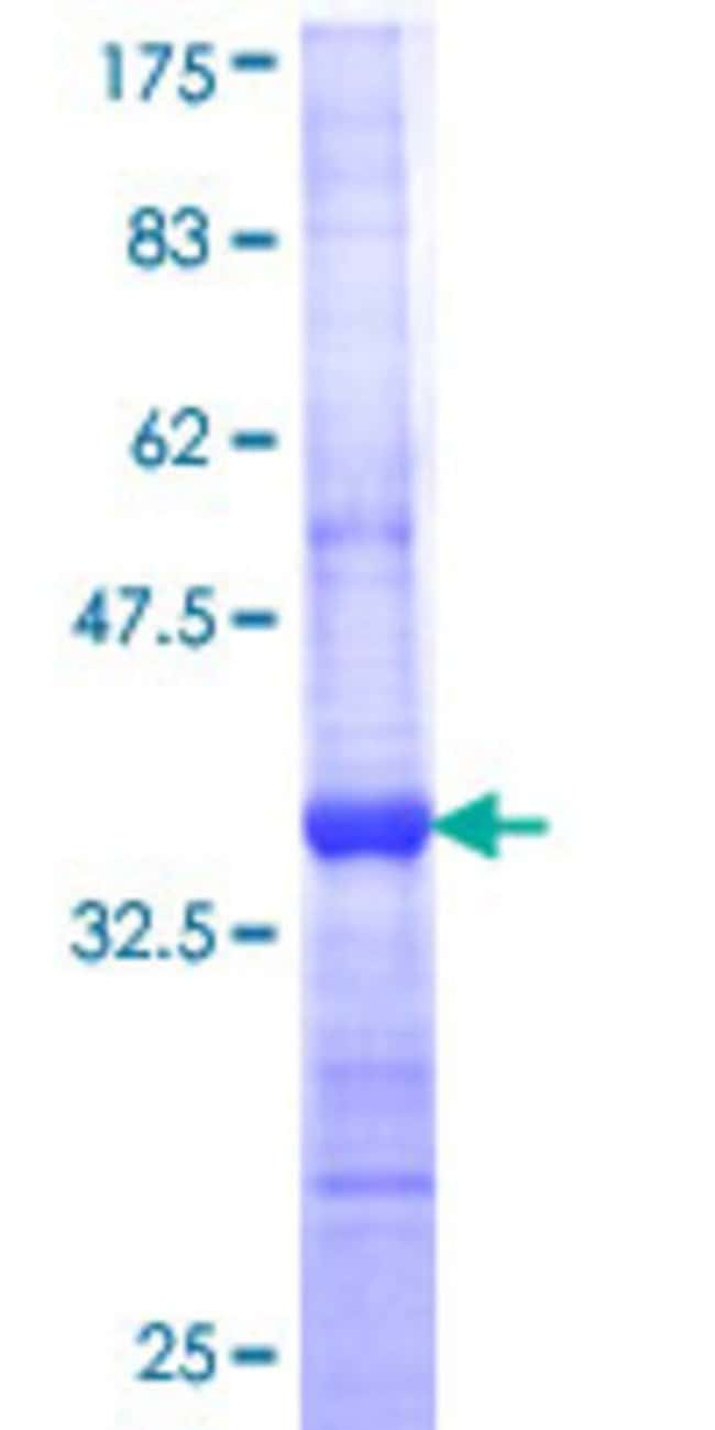 Abnova™Human CST6 Partial ORF (NP_001314, 61 a.a. - 149 a.a.) Recombinant Protein with GST-tag at N-terminal 10μg Abnova™Human CST6 Partial ORF (NP_001314, 61 a.a. - 149 a.a.) Recombinant Protein with GST-tag at N-terminal