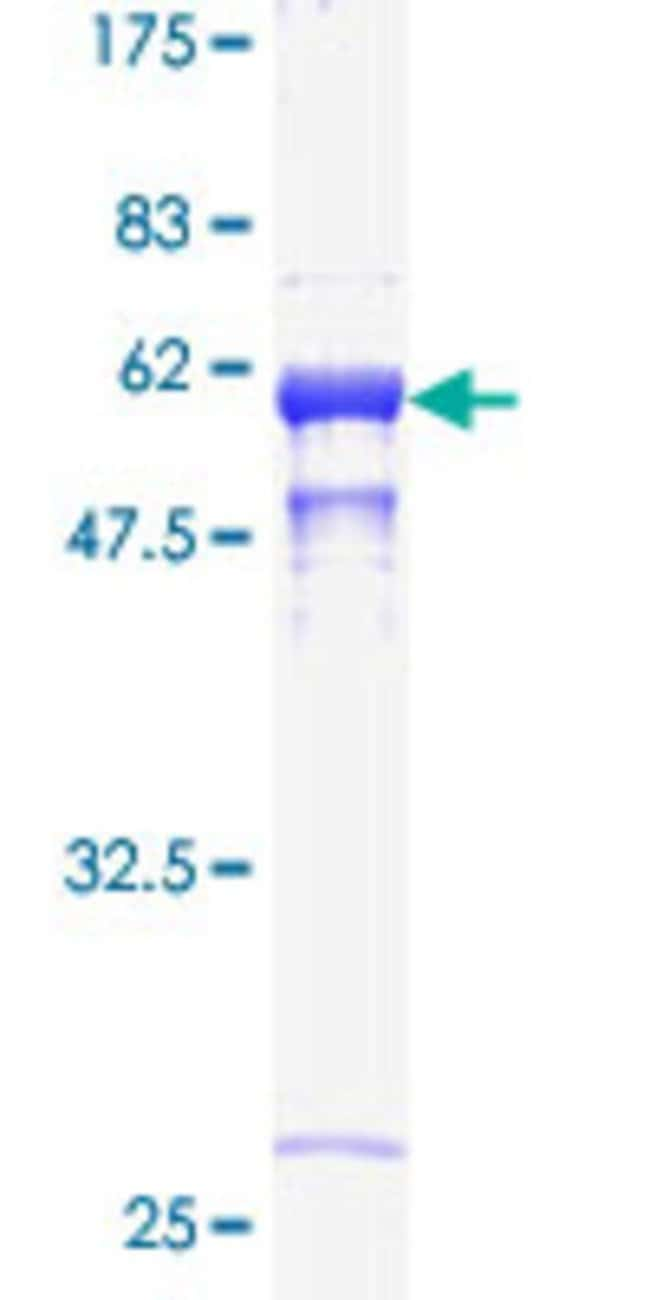 Abnova™Human CTSB Full-length ORF (AAH10240, 21 a.a. - 339 a.a.) Recombinant Protein with GST-tag at N-terminal 10μg Abnova™Human CTSB Full-length ORF (AAH10240, 21 a.a. - 339 a.a.) Recombinant Protein with GST-tag at N-terminal