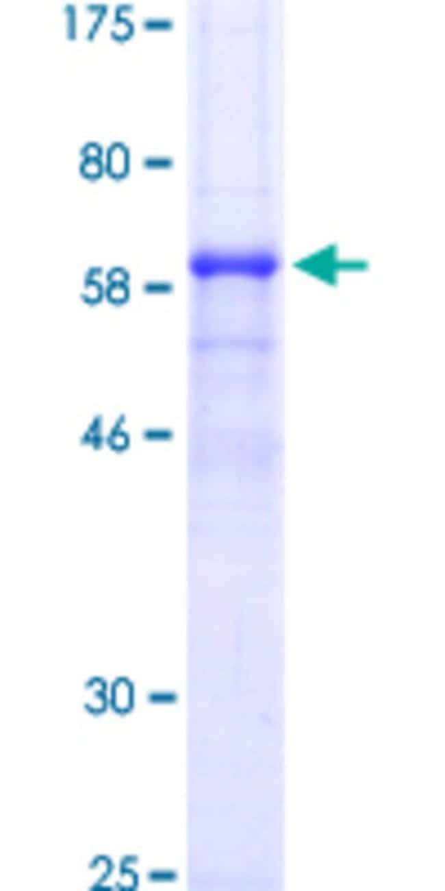 Abnova™Human CTSB Full-length ORF (NP_001899.1, 1 a.a. - 339 a.a.) Recombinant Protein with GST-tag at N-terminal 10μg Abnova™Human CTSB Full-length ORF (NP_001899.1, 1 a.a. - 339 a.a.) Recombinant Protein with GST-tag at N-terminal