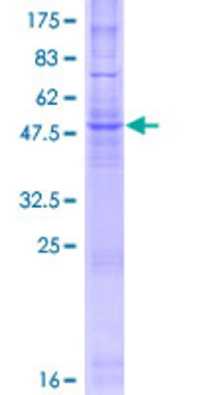 Abnova™Human CYB561 Full-length ORF (NP_001017916.1, 1 a.a. - 251 a.a.) Recombinant Protein with GST-tag at N-terminal 25μg Abnova™Human CYB561 Full-length ORF (NP_001017916.1, 1 a.a. - 251 a.a.) Recombinant Protein with GST-tag at N-terminal