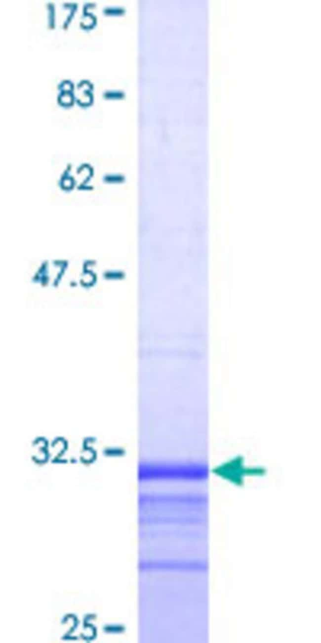 Abnova™Human CYBB Partial ORF (AAH32720, 120 a.a. - 171 a.a.) Recombinant Protein with GST-tag at N-terminal 25μg Abnova™Human CYBB Partial ORF (AAH32720, 120 a.a. - 171 a.a.) Recombinant Protein with GST-tag at N-terminal