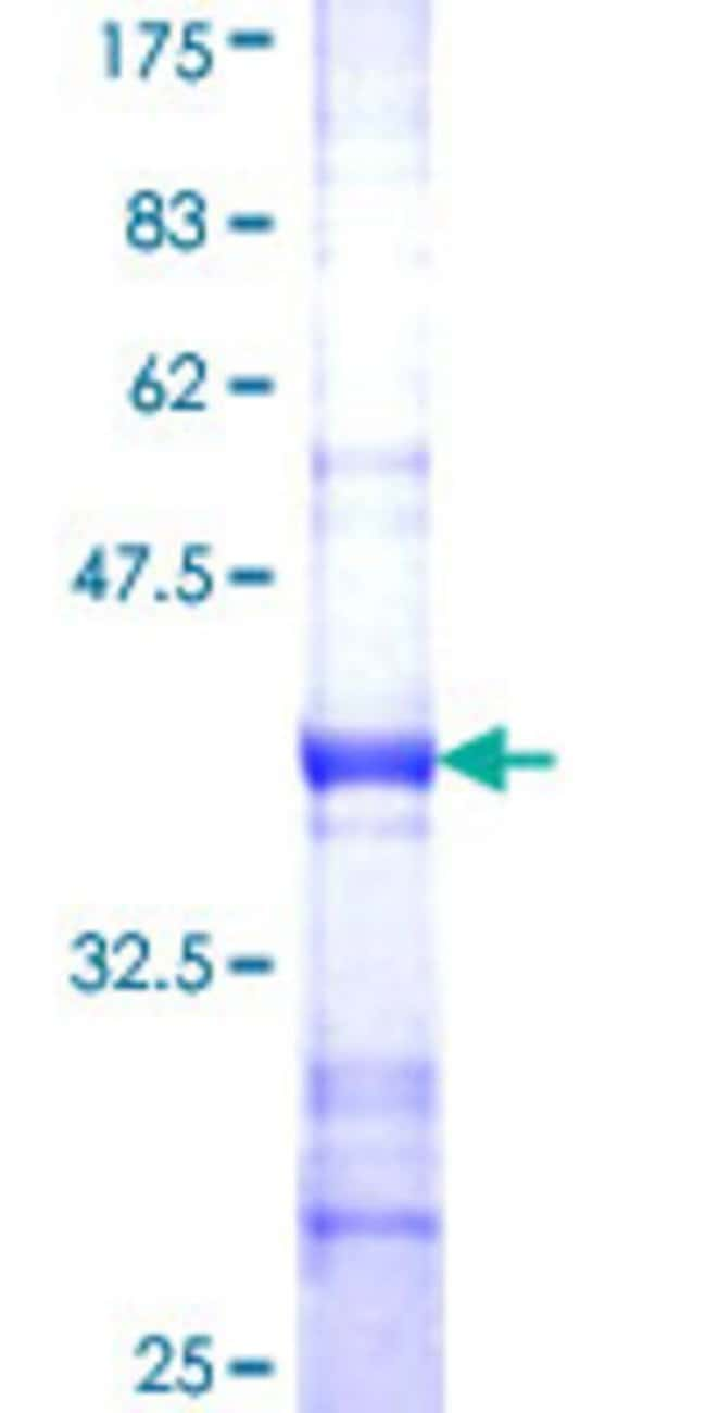 Abnova™Human CYP2A6 Partial ORF (AAH28215, 395 a.a. - 494 a.a.) Recombinant Protein with GST-tag at N-terminal 25μg Abnova™Human CYP2A6 Partial ORF (AAH28215, 395 a.a. - 494 a.a.) Recombinant Protein with GST-tag at N-terminal