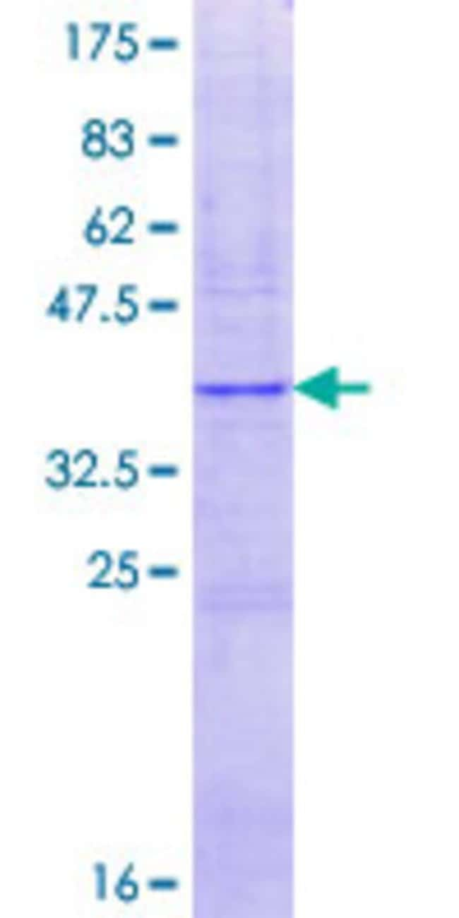 Abnova™ Human CYP2A13 Partial ORF (NP_000757.2, 395 a.a. - 494 a.a.) Recombinant Protein with GST-tag at N-terminal 10μg Abnova™ Human CYP2A13 Partial ORF (NP_000757.2, 395 a.a. - 494 a.a.) Recombinant Protein with GST-tag at N-terminal