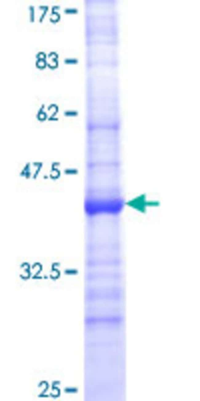 Abnova™Human CYP24A1 Partial ORF (NP_000773, 415 a.a. - 514 a.a.) Recombinant Protein with GST-tag at N-terminal 25μg Abnova™Human CYP24A1 Partial ORF (NP_000773, 415 a.a. - 514 a.a.) Recombinant Protein with GST-tag at N-terminal
