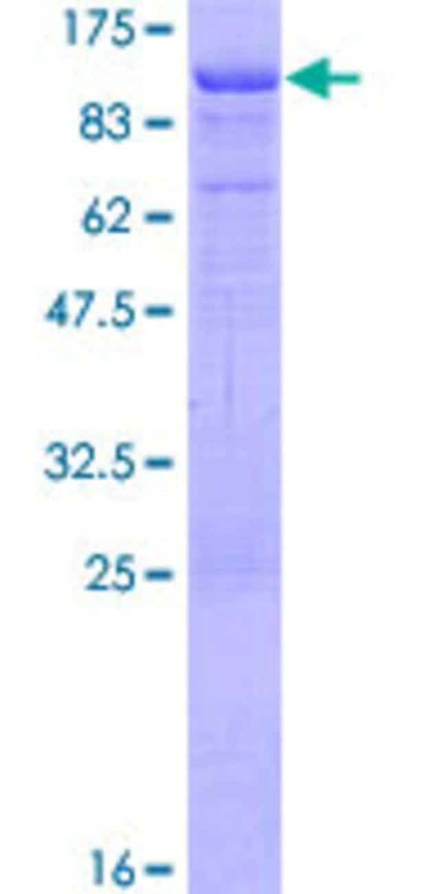 Abnova™Human DAB1 Full-length ORF (AAH67445.1, 1 a.a. - 553 a.a.) Recombinant Protein with GST-tag at N-terminal 10μg Abnova™Human DAB1 Full-length ORF (AAH67445.1, 1 a.a. - 553 a.a.) Recombinant Protein with GST-tag at N-terminal