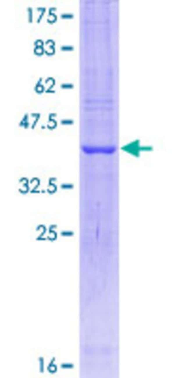 Abnova™Human DAO Partial ORF (NP_001908, 119 a.a. - 218 a.a.) Recombinant Protein with GST-tag at N-terminal 10μg Abnova™Human DAO Partial ORF (NP_001908, 119 a.a. - 218 a.a.) Recombinant Protein with GST-tag at N-terminal