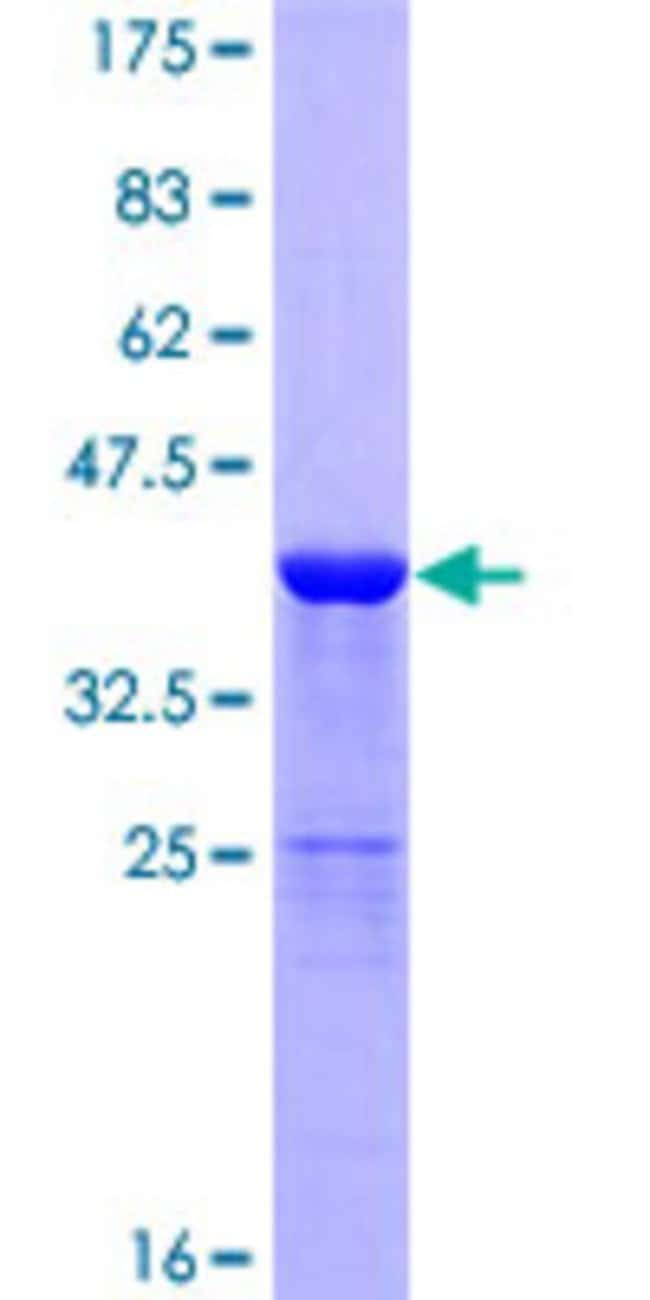 Abnova™Human DBI Full-length ORF (NP_065438.1, 1 a.a. - 104 a.a.) Recombinant Protein with GST-tag at N-terminal 25μg Abnova™Human DBI Full-length ORF (NP_065438.1, 1 a.a. - 104 a.a.) Recombinant Protein with GST-tag at N-terminal