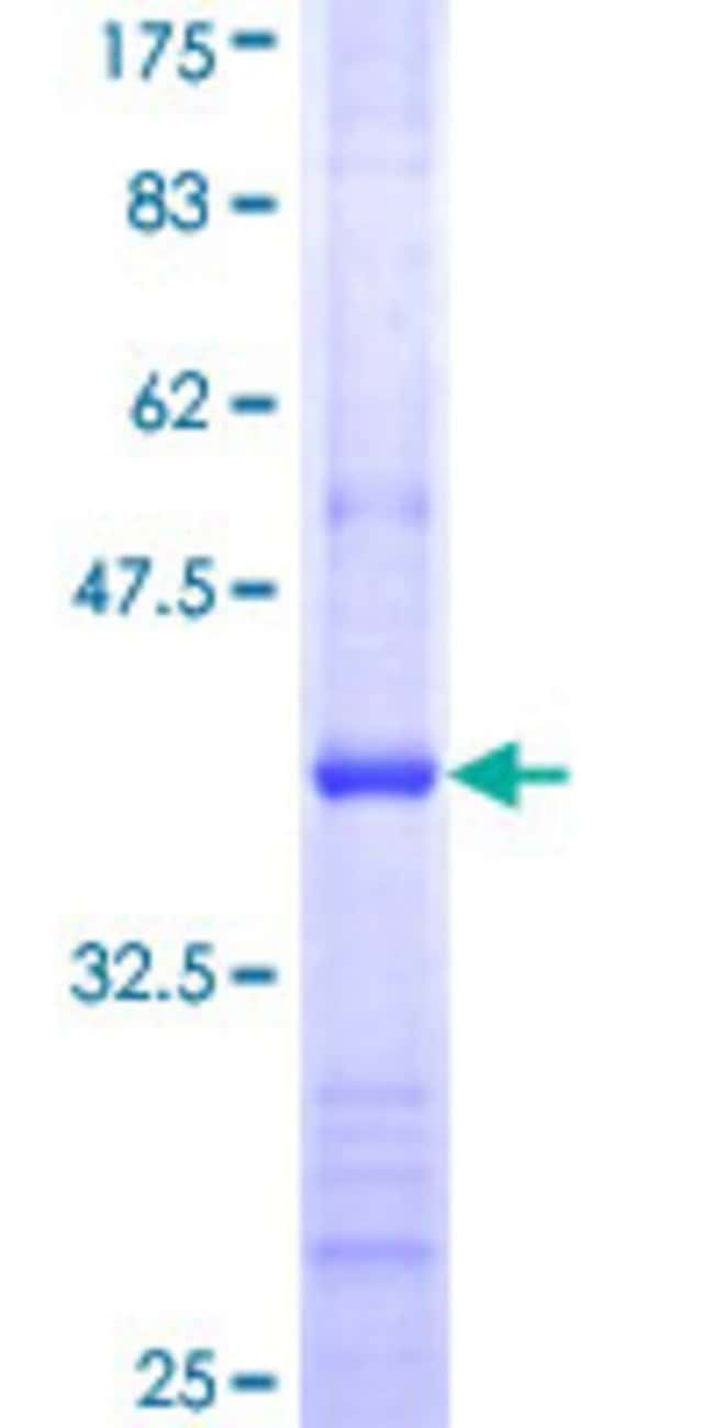 Abnova™Human DCK Partial ORF (NP_000779, 161 a.a. - 260 a.a.) Recombinant Protein with GST-tag at N-terminal 25μg Abnova™Human DCK Partial ORF (NP_000779, 161 a.a. - 260 a.a.) Recombinant Protein with GST-tag at N-terminal