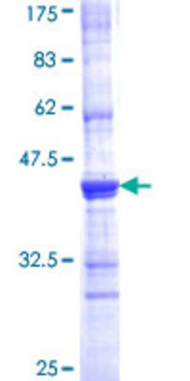 AbnovaHuman ACE Partial ORF (AAH36375, 592 a.a. - 701 a.a.) Recombinant