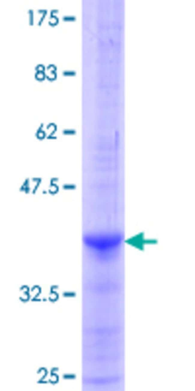 Abnova™Human DDC Partial ORF (NP_000781.1, 371 a.a. - 480 a.a.) Recombinant Protein with GST-tag at N-terminal 25μg Abnova™Human DDC Partial ORF (NP_000781.1, 371 a.a. - 480 a.a.) Recombinant Protein with GST-tag at N-terminal