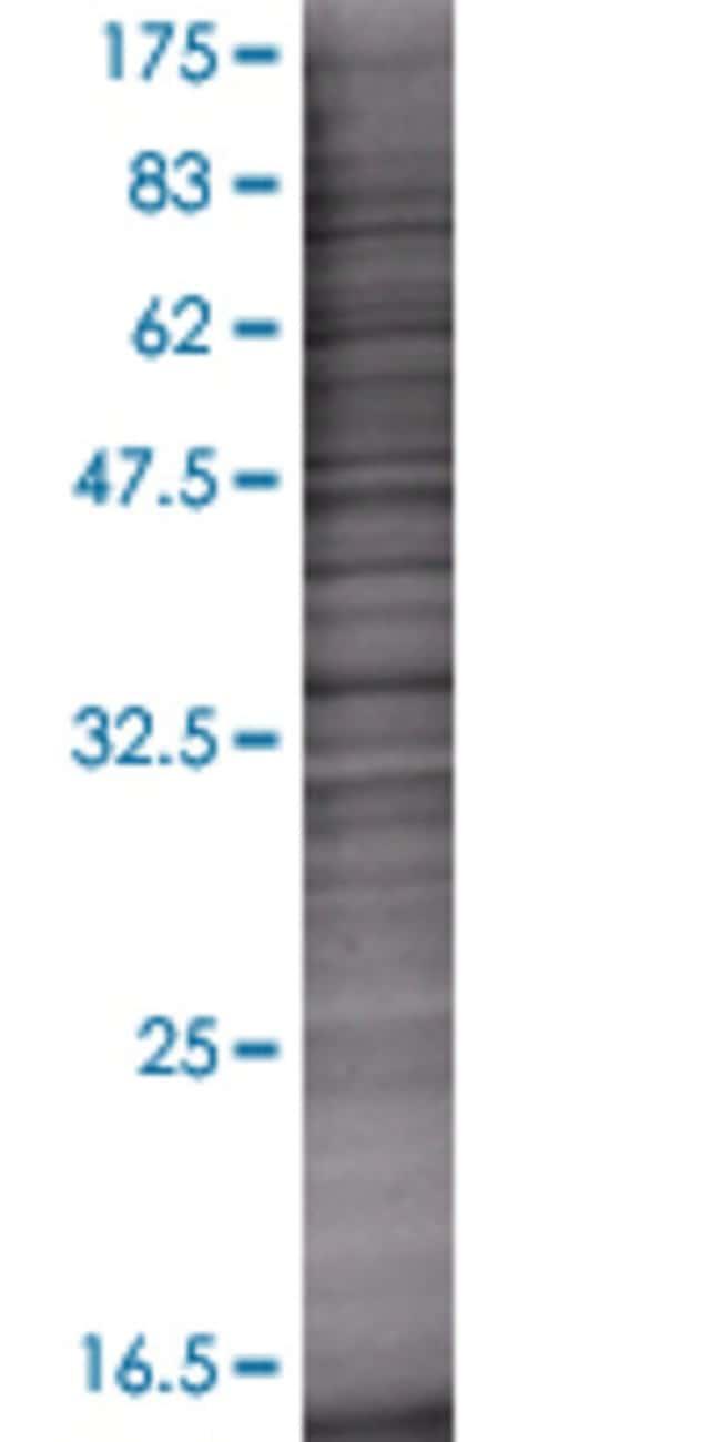 AbnovaAKR1C1 293T Cell Transient Overexpression Lysate (Denatured) (T01)