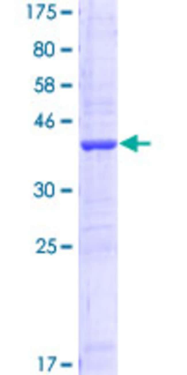 AbnovaHuman AKR1C2 Partial ORF (AAH63574, 224 a.a. - 323 a.a.) Recombinant