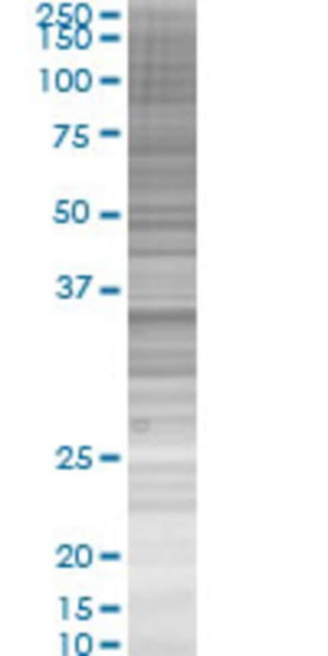 AbnovaAKR1C2 293T Cell Transient Overexpression Lysate (Denatured) 100μL:Protein