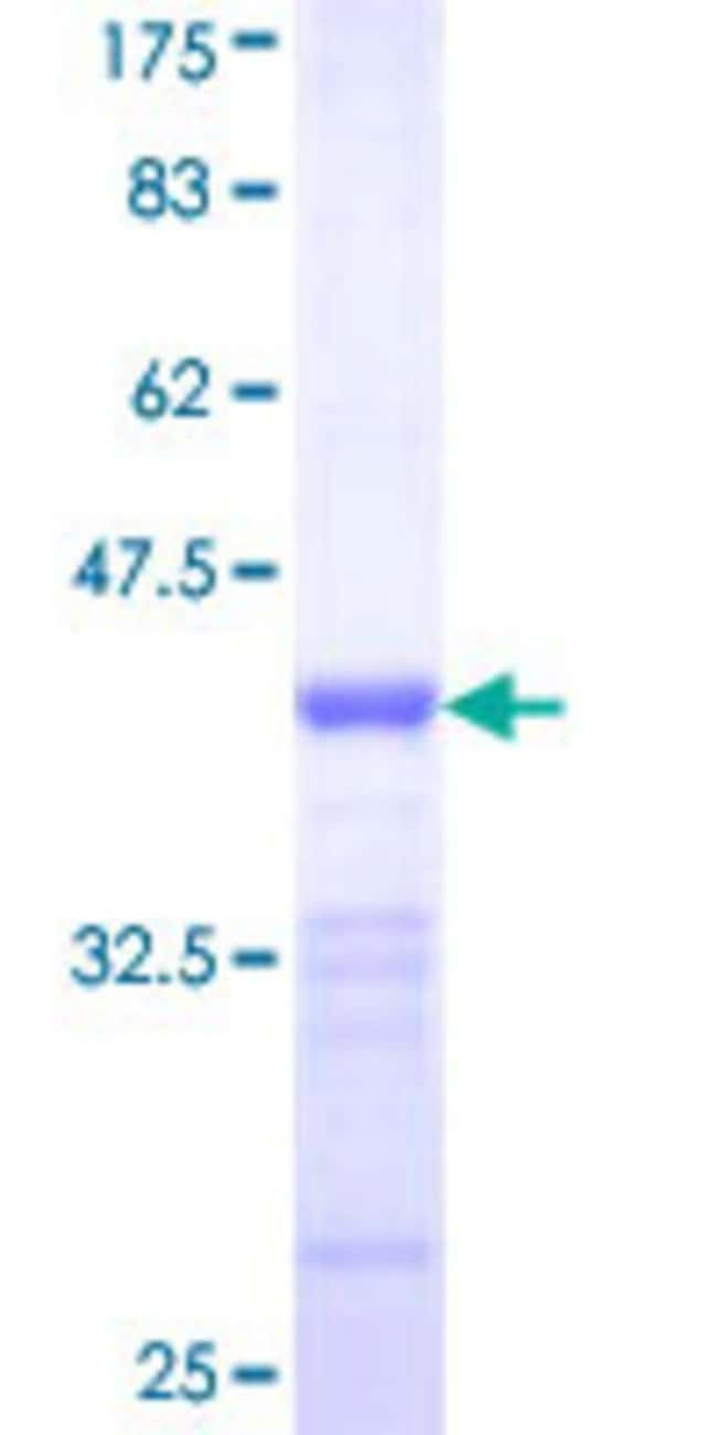 Abnova™Human DLG3 Partial ORF (NP_066943, 281 a.a. - 380 a.a.) Recombinant Protein with GST-tag at N-terminal 10μg Abnova™Human DLG3 Partial ORF (NP_066943, 281 a.a. - 380 a.a.) Recombinant Protein with GST-tag at N-terminal