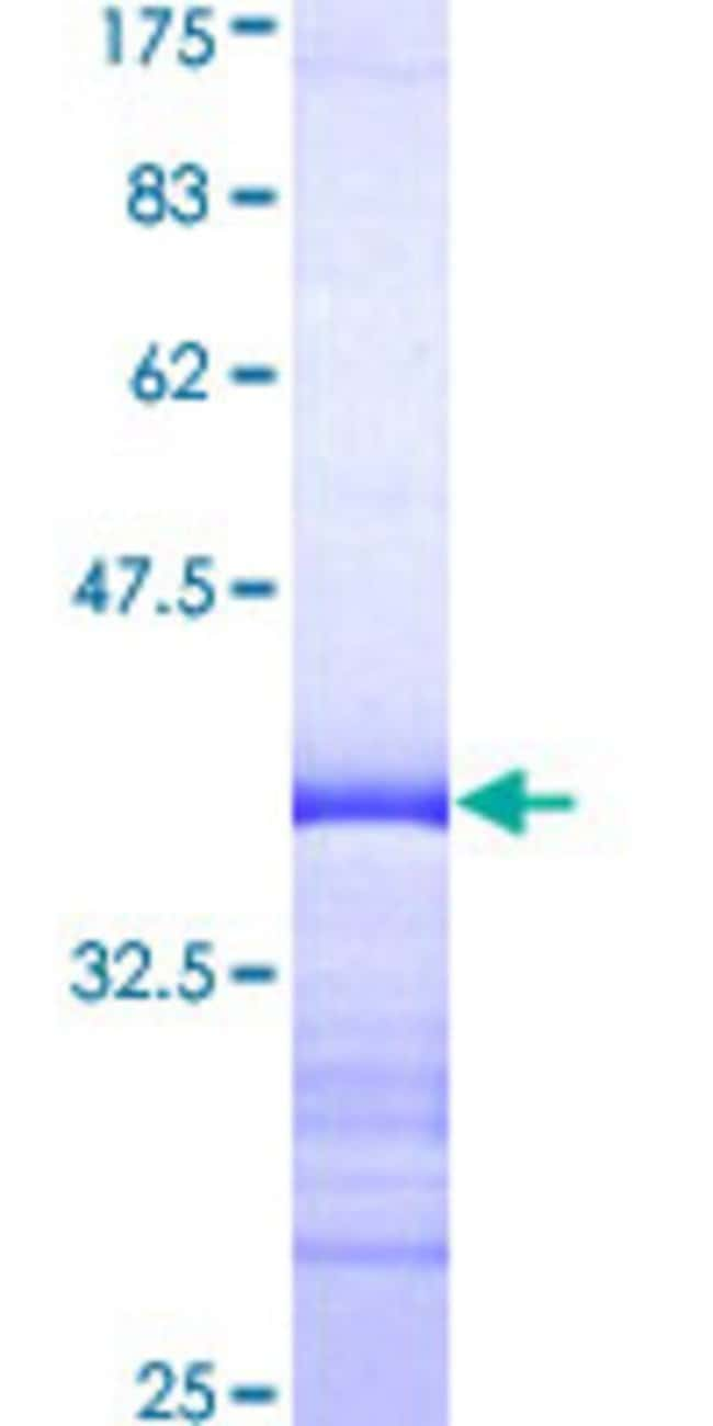 Abnova™Human DLX4 Partial ORF (AAH16145, 1 a.a. - 98 a.a.) Recombinant Protein with GST-tag at N-terminal 25μg Abnova™Human DLX4 Partial ORF (AAH16145, 1 a.a. - 98 a.a.) Recombinant Protein with GST-tag at N-terminal