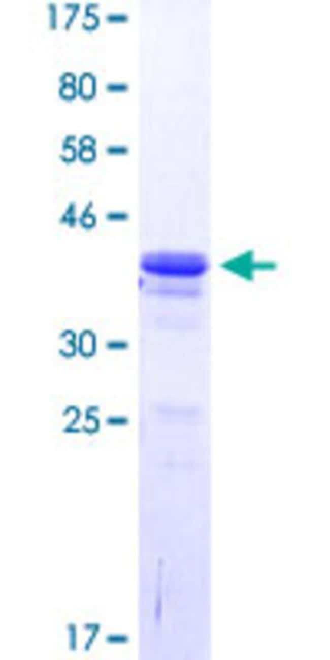Abnova™Human DLX5 Partial ORF (NP_005212.1, 1 a.a. - 110 a.a.) Recombinant Protein with GST-tag at N-terminal 10μg Abnova™Human DLX5 Partial ORF (NP_005212.1, 1 a.a. - 110 a.a.) Recombinant Protein with GST-tag at N-terminal