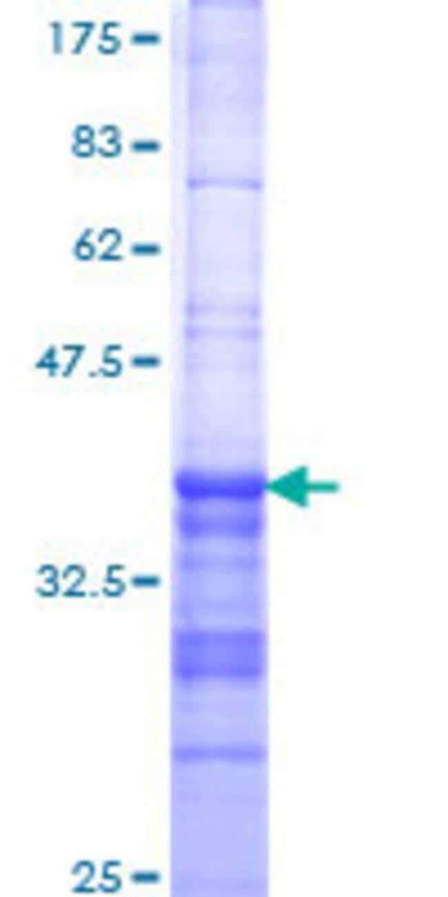 Abnova™Human DLX6 Partial ORF (XP_376652, 71 a.a. - 160 a.a.) Recombinant Protein with GST-tag at N-terminal 25μg Abnova™Human DLX6 Partial ORF (XP_376652, 71 a.a. - 160 a.a.) Recombinant Protein with GST-tag at N-terminal