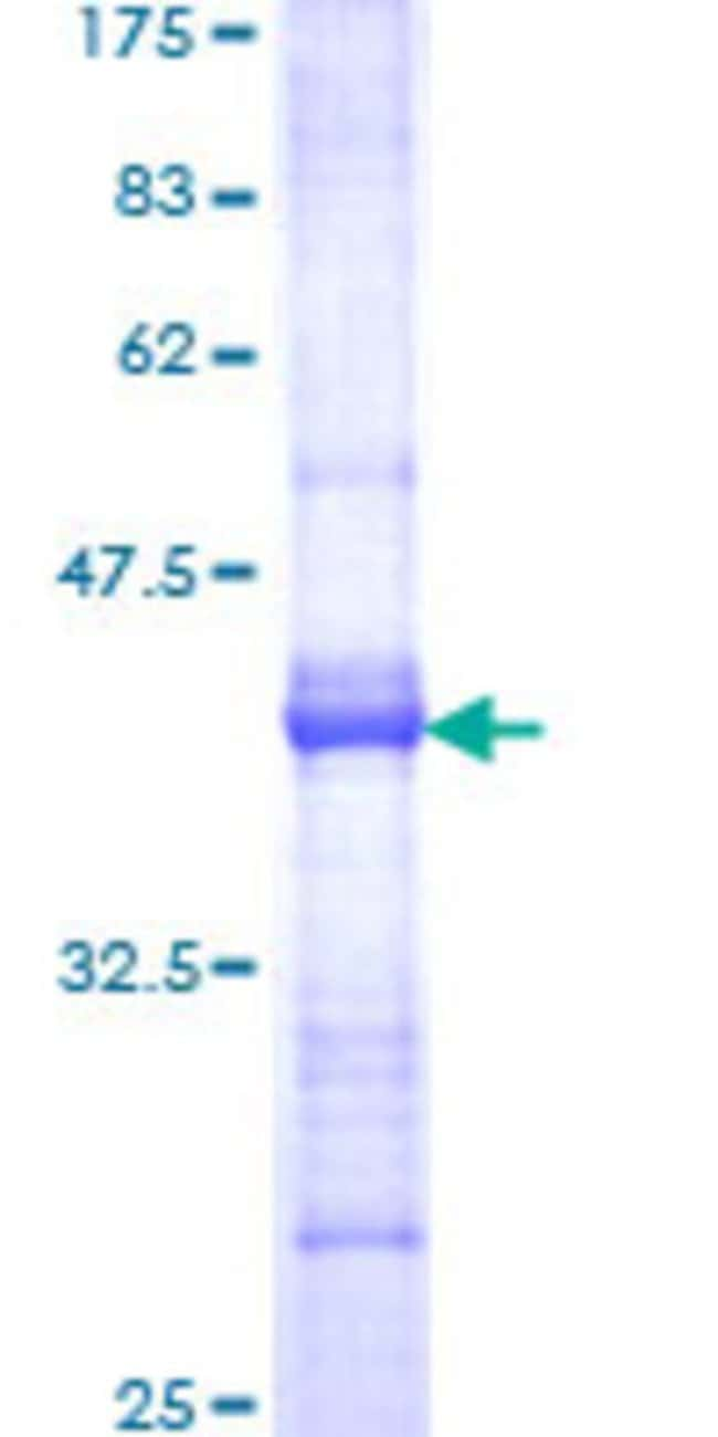 Abnova™Human DMBT1 Partial ORF (NP_004397, 1377 a.a. - 1485 a.a.) Recombinant Protein with GST-tag at N-terminal 25μg Abnova™Human DMBT1 Partial ORF (NP_004397, 1377 a.a. - 1485 a.a.) Recombinant Protein with GST-tag at N-terminal