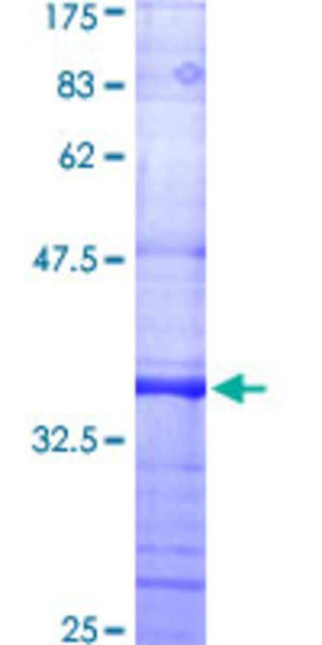 Abnova™Human DNM2 Partial ORF (AAH54501, 611 a.a. - 710 a.a.) Recombinant Protein with GST-tag at N-terminal 10μg Abnova™Human DNM2 Partial ORF (AAH54501, 611 a.a. - 710 a.a.) Recombinant Protein with GST-tag at N-terminal