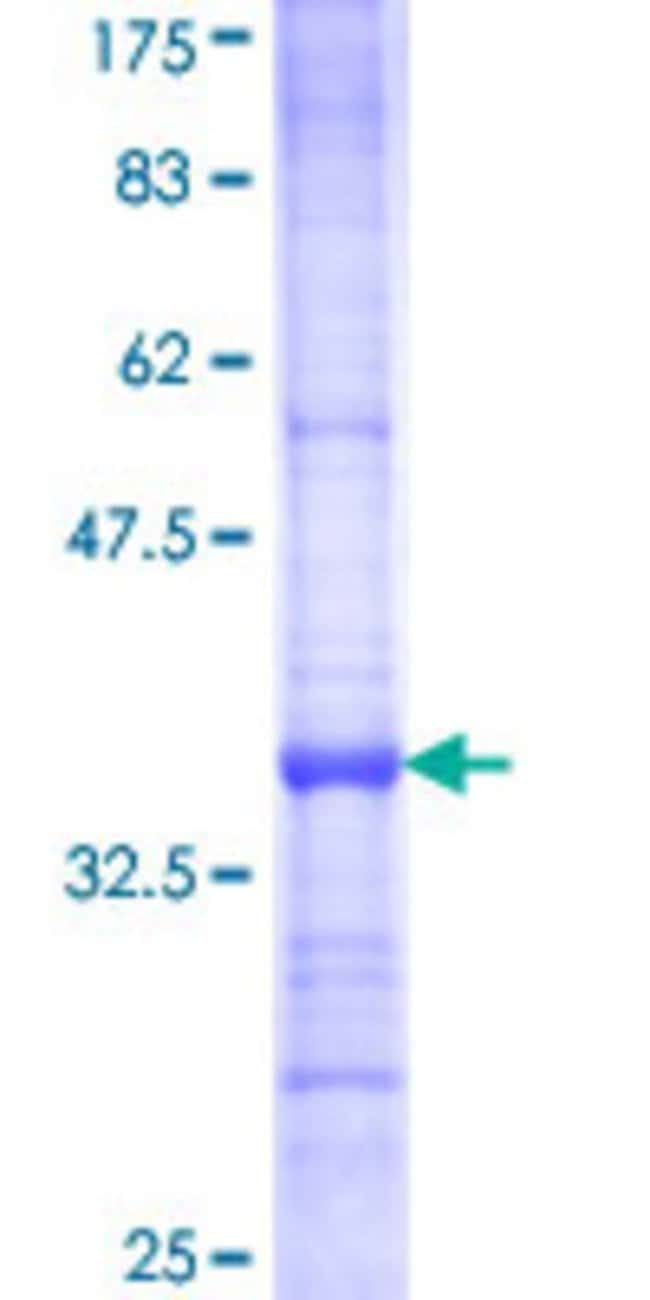 Abnova™Human DPAGT1 Partial ORF (NP_001373, 296 a.a. - 377 a.a.) Recombinant Protein with GST-tag at N-terminal 25μg Abnova™Human DPAGT1 Partial ORF (NP_001373, 296 a.a. - 377 a.a.) Recombinant Protein with GST-tag at N-terminal