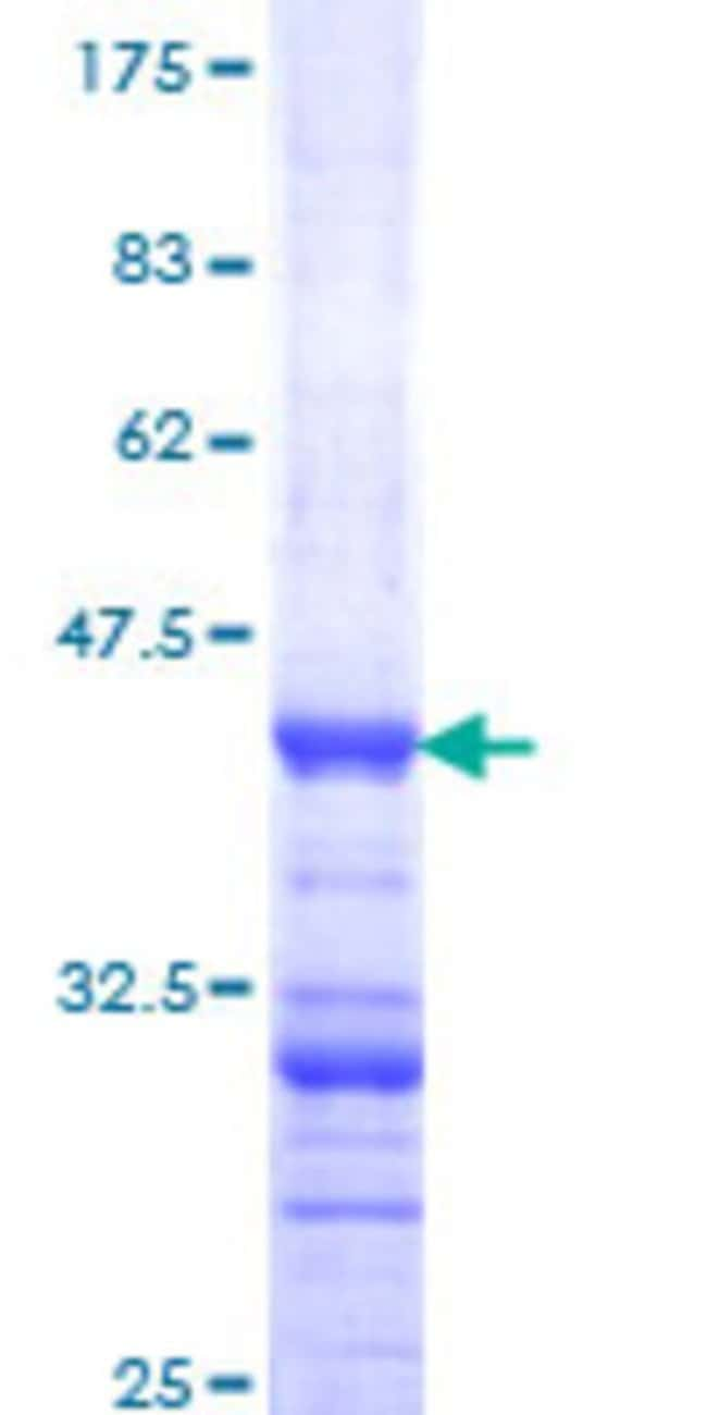 Abnova™Human DPYD Partial ORF (NP_000101, 1 a.a. - 110 a.a.) Recombinant Protein with GST-tag at N-terminal 10μg Abnova™Human DPYD Partial ORF (NP_000101, 1 a.a. - 110 a.a.) Recombinant Protein with GST-tag at N-terminal