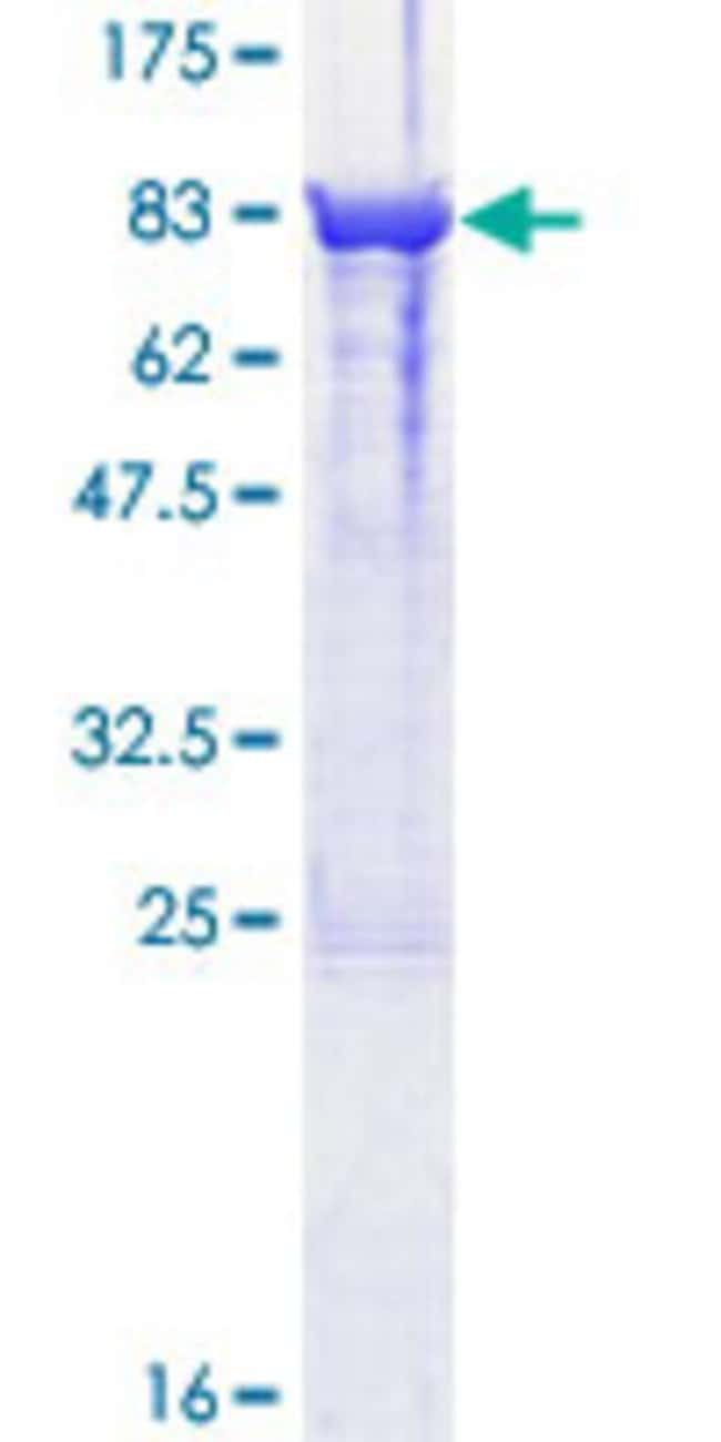 Abnova™Human DPYSL3 Full-length ORF (NP_001378.1, 1 a.a. - 570 a.a.) Recombinant Protein with GST-tag at N-terminal 10μg Abnova™Human DPYSL3 Full-length ORF (NP_001378.1, 1 a.a. - 570 a.a.) Recombinant Protein with GST-tag at N-terminal