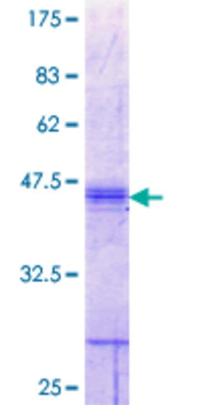 Abnova™Human SLC26A2 Partial ORF (NP_000103.1, 1 a.a. - 108 a.a.) Recombinant Protein with GST-tag at N-terminal 10μg Abnova™Human SLC26A2 Partial ORF (NP_000103.1, 1 a.a. - 108 a.a.) Recombinant Protein with GST-tag at N-terminal