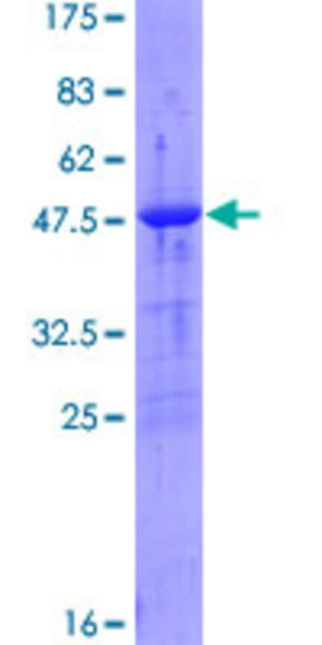 Abnova™Human DTYMK Full-length ORF (NP_036277.2, 1 a.a. - 212 a.a.) Recombinant Protein with GST-tag at N-terminal 25μg Abnova™Human DTYMK Full-length ORF (NP_036277.2, 1 a.a. - 212 a.a.) Recombinant Protein with GST-tag at N-terminal