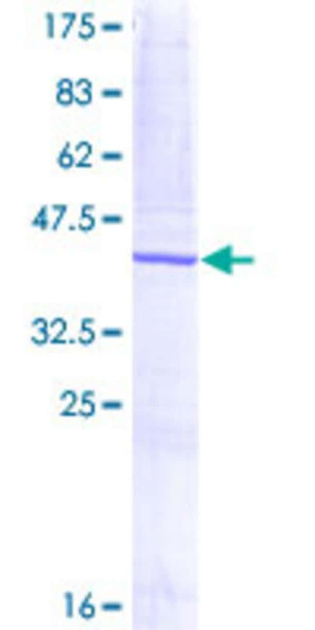 Abnova™Human DUSP3 Full-length ORF (AAH35701, 1 a.a. - 144 a.a.) Recombinant Protein with GST-tag at N-terminal 25μg Abnova™Human DUSP3 Full-length ORF (AAH35701, 1 a.a. - 144 a.a.) Recombinant Protein with GST-tag at N-terminal