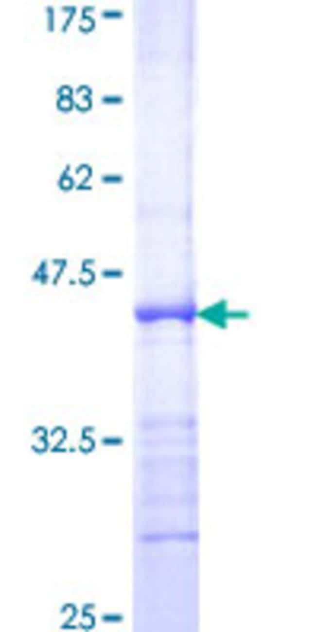 Abnova™Human E2F2 Partial ORF (NP_004082, 1 a.a. - 110 a.a.) Recombinant Protein with GST-tag at N-terminal 10μg Abnova™Human E2F2 Partial ORF (NP_004082, 1 a.a. - 110 a.a.) Recombinant Protein with GST-tag at N-terminal