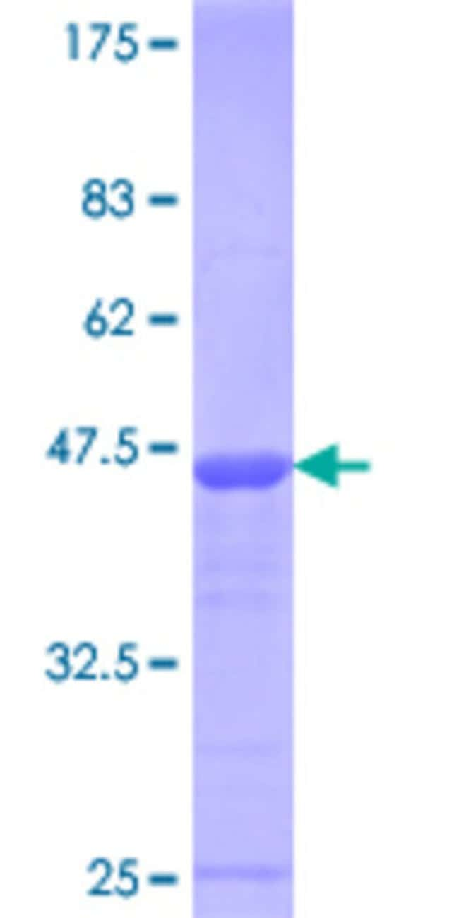 Abnova™Human E4F1 Partial ORF (NP_004415.2, 685 a.a. - 784 a.a.) Recombinant Protein with GST-tag at N-terminal 25μg Abnova™Human E4F1 Partial ORF (NP_004415.2, 685 a.a. - 784 a.a.) Recombinant Protein with GST-tag at N-terminal